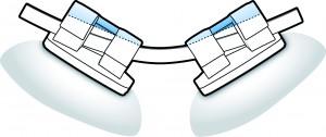 Sistema autoligado con bracket Flair SLT. Requiere menor deflexión del arco gracias a su tapa de cierre flexible y biomecánica.