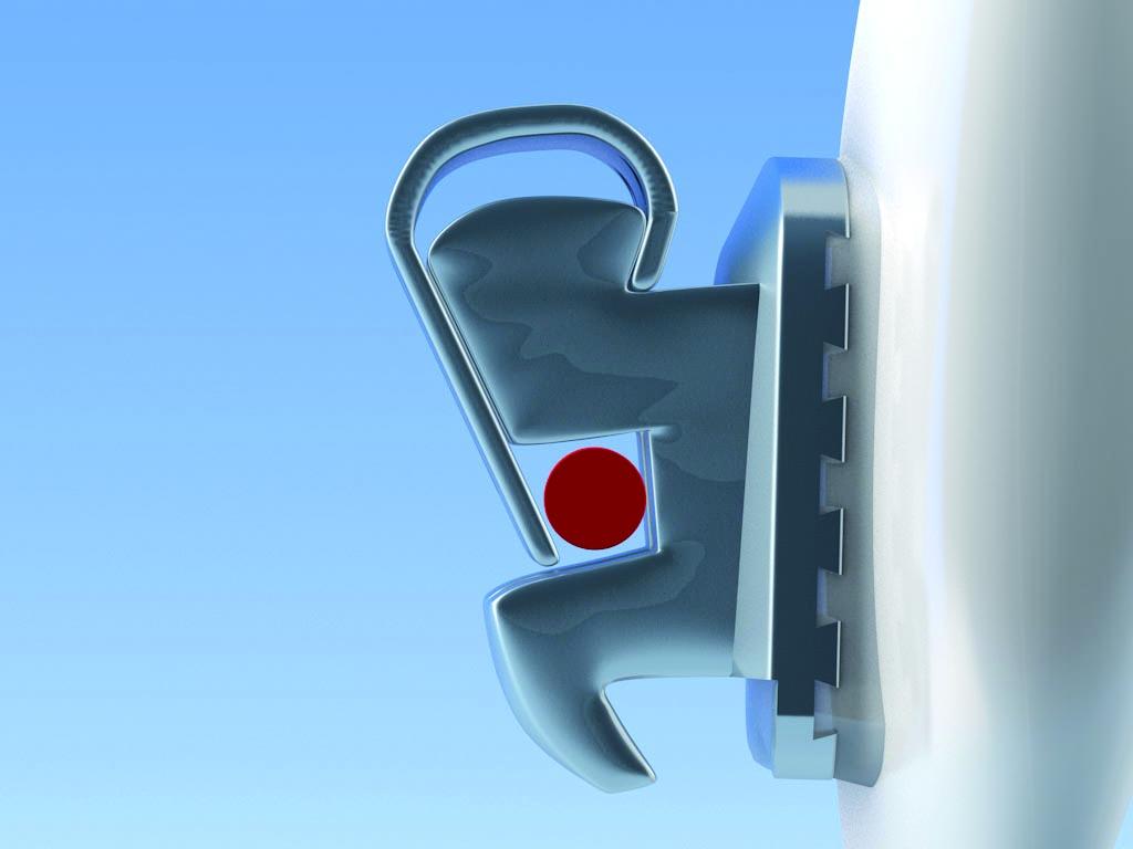 Flair SLT Bracket Autoligado Adenta. Pasivo con arcos redondos.
