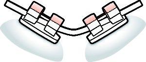 Sistema autoligado con tapa rígida tradicional