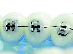 Ortodoncia lingual -Joy LIngual bracket de Adenta