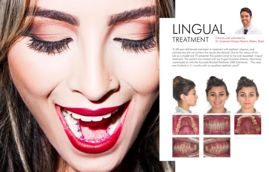 Compartimos contigo este excelente caso de ortodoncia lingual con el bracket Joy Lingual de ADENTA, presentado por el Dr. Graziane.
