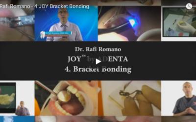 CURSO DE ORTODONCIA LINGUAL con el Dr. Rafi Romano – Video nº 4