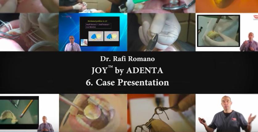 Nuevo vídeo de CURSO DE ORTODONCIA LINGUAL con el Dr. Rafi Romano – Parte VI