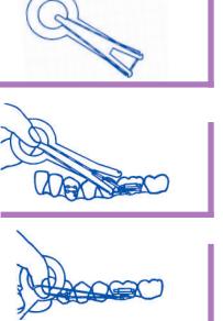 Aplicador elásticos intraorales Leone