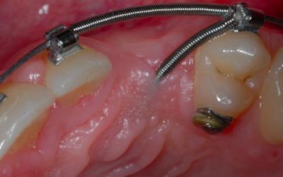 Sistema Easy Way Coil – La solución ideal para dientes impactados: caso de estudio
